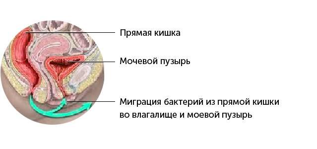Хронический бактериальный цистит - Развитие, симптомы, лечение - Препарат УРОЛАЙФ